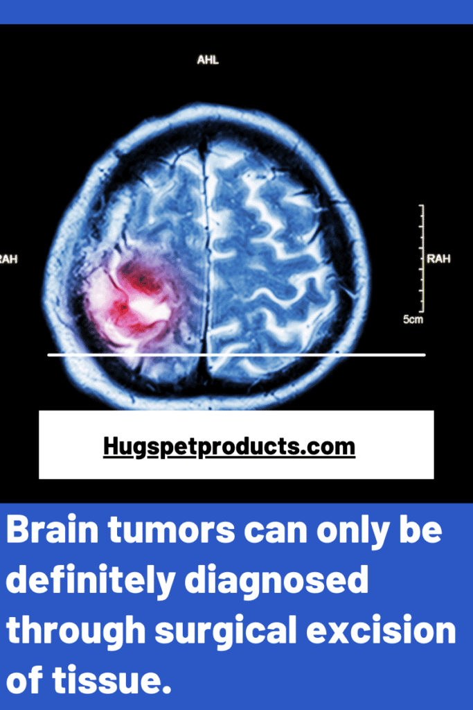 Brain tumor can only be definitely diagnosed through biopsy